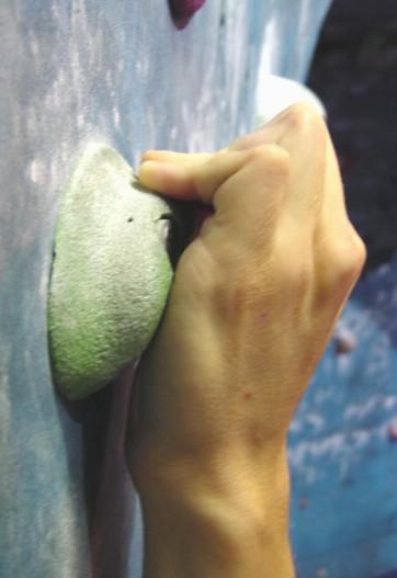 Douleur au doigt suite à une chute... Arque2